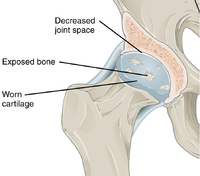 Annotated illustration of hip joint with ostoarthritis